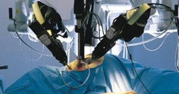 Robotic-surgery-india